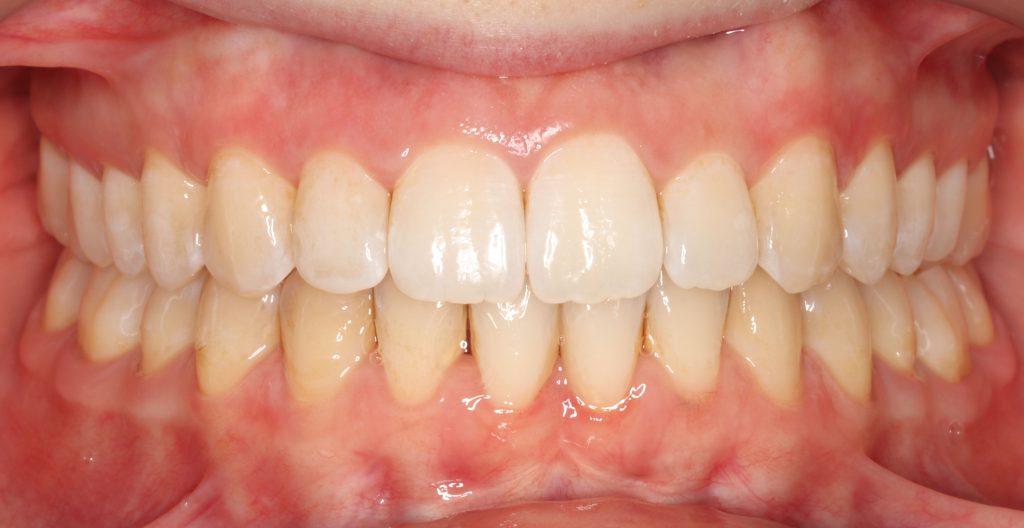 Ortodoncija i parodontologija, case study – naš slučaj – Ortodent
